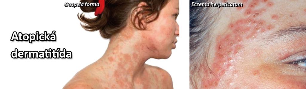 reklama_1_atopicka-dermatitida