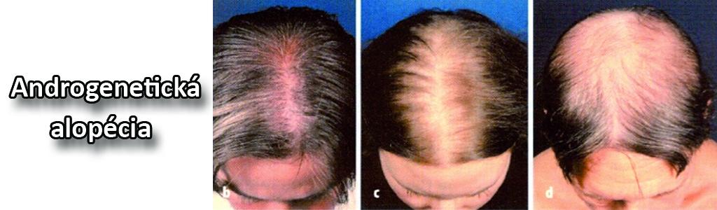 reklama_5_androgeneticka-alopecia